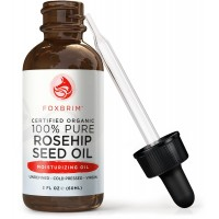 Foxbrim Organic Rosehip Seed Oil - Virgin Cold Pressed & Unrefined - Perfect for improving Hair, Skin, Nails & Fading Wrinkles, Stretch Marks & Scars - Rich in Omega Fatty Acids, Vitamins A & C - 2OZ
